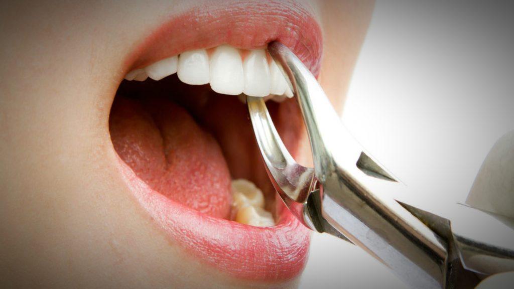 2-wisdom-teeth-surgery1_orig