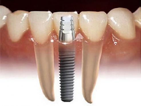 zubni-implanti-framar
