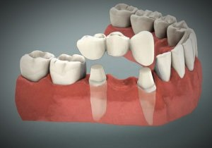 dental-bridge-300x210