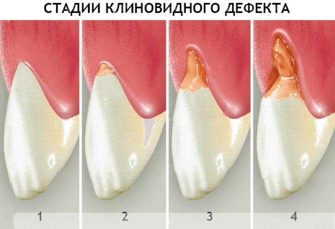 E:\Users\User\Desktop\Клиновидни дефекти\Stadii-klinovidnogo-defekta-zubov-e1518121603239-670x459.png.webp
