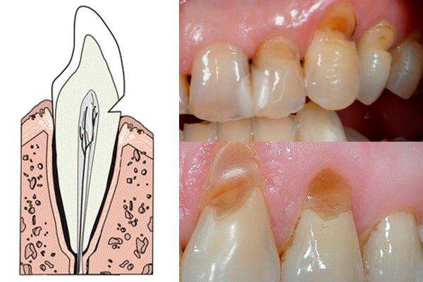 klinovidnii-defekt-zubov-lechenie-lazerom